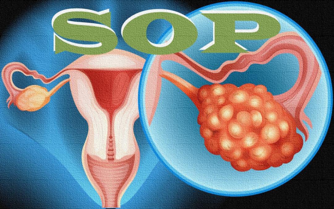 ¿Qué es el SOP – Síndrome de Ovario Poliquístico?